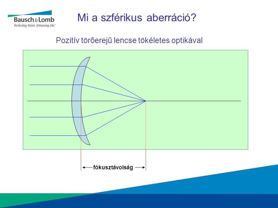 Pseudophakia: Negatív lencse Cornea Negatív SA IOL Nincs szférikus aberráció + -