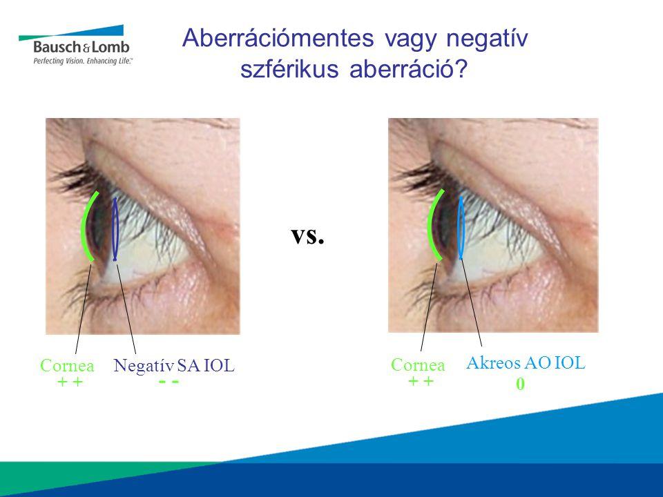 Aberrációmentes vagy negatív szférikus aberráció? CorneaNegatív SA IOL + - Akreos AO IOL Cornea + 0 vs.