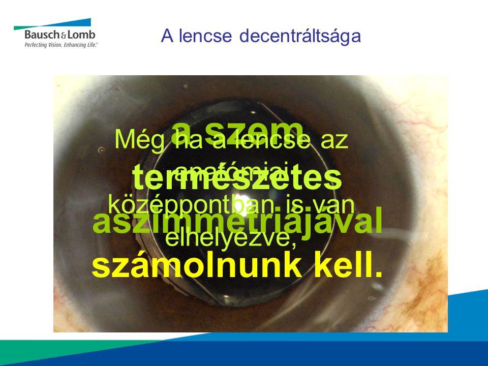 A lencse decentráltsága a szem természetes aszimmetriájával számolnunk kell. Még ha a lencse az anatómiai középpontban is van elhelyezve,