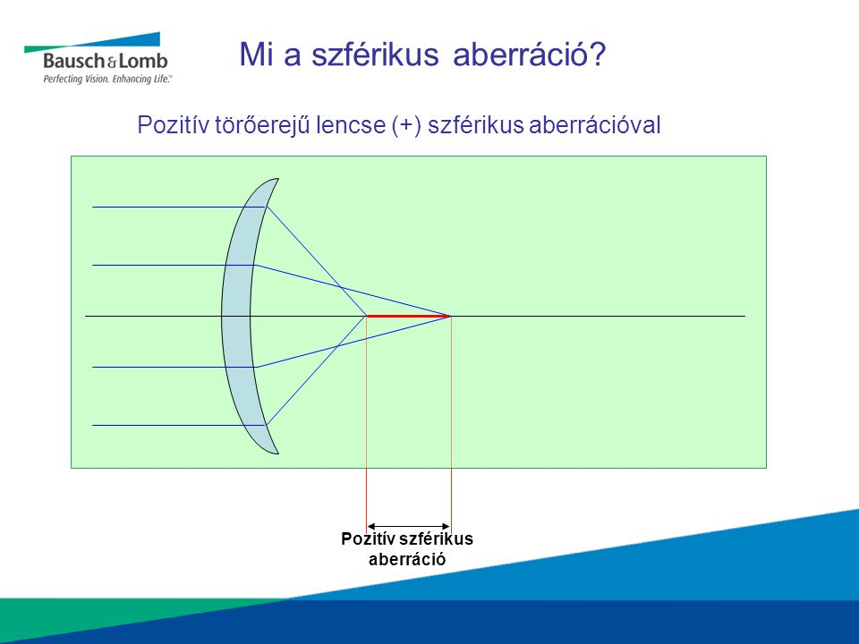 Első helyen! Az aberrációmentes aszferikus lencse a jövő standardja.