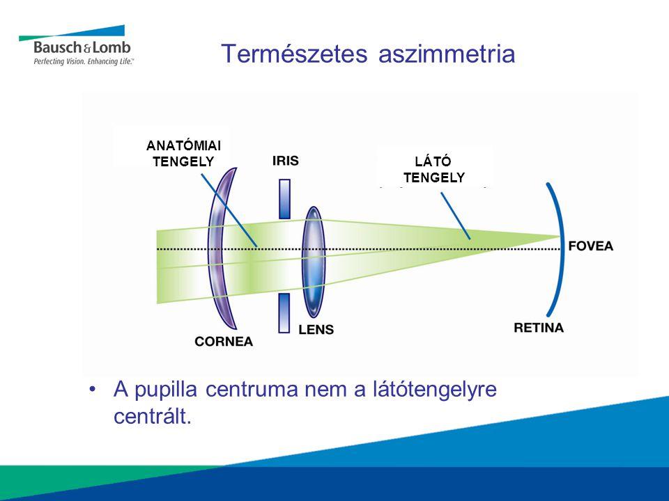 Természetes aszimmetria •A pupilla centruma nem a látótengelyre centrált. ANATÓMIAI TENGELY LÁTÓ TENGELY
