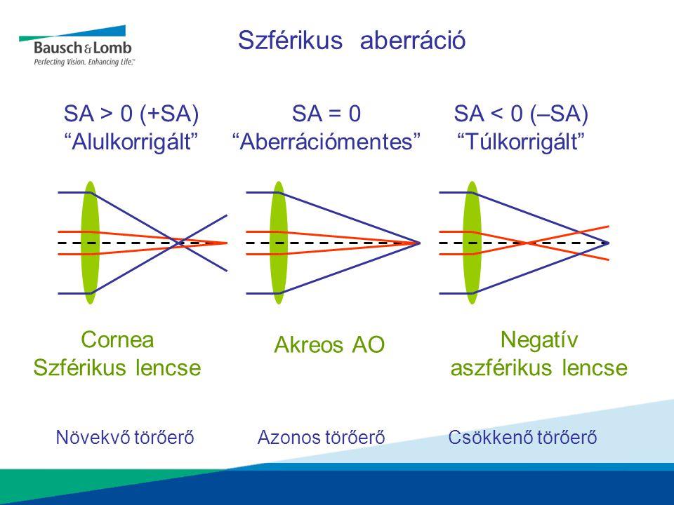"""Szférikus aberráció SA > 0 (+SA) """"Alulkorrigált"""" SA = 0 """"Aberrációmentes"""" SA < 0 (–SA) """"Túlkorrigált"""" Cornea Szférikus lencse Akreos AO Negatív aszfér"""