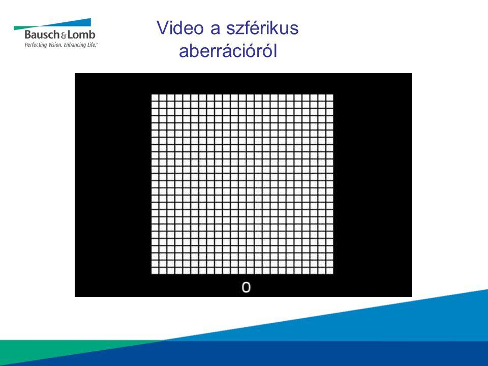1  m of defocus0.3  m of SA 1  m of defocus + 0.3  m of SA A pozitív szférikus aberráció nem mindig jár hátránnyal •A pozitív SA ellensúlyoz más aberrációkat (Applegate, JCRS (2004)) •A cornea magasabb rendű aberrációinak csak 30%-a hozható összefüggésbe a SA-val.