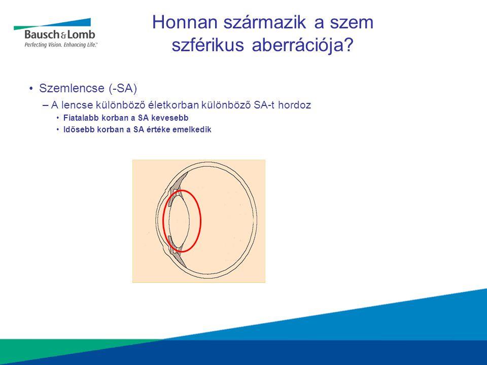 Tényleges eredmények •Szférikus lencse esetén a kontrasztérzékenység 25%-kal csökken az aszférikus lencséhez képest Szférikus lencsével Aszférikus lencsével