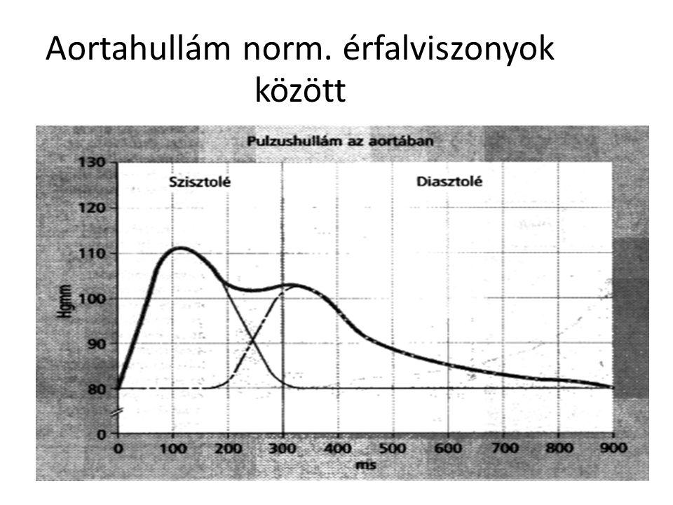 Aortahullám norm. érfalviszonyok között