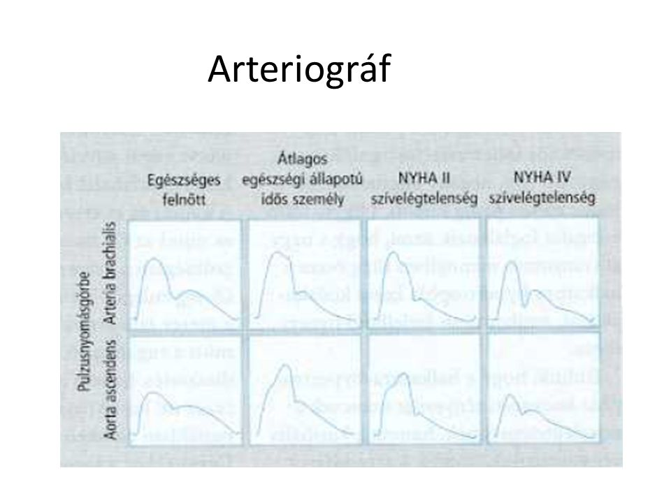 Arteriográf