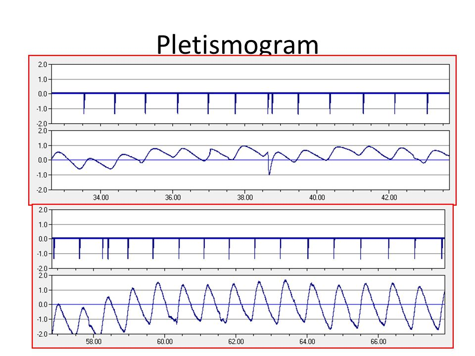 Pletismogram