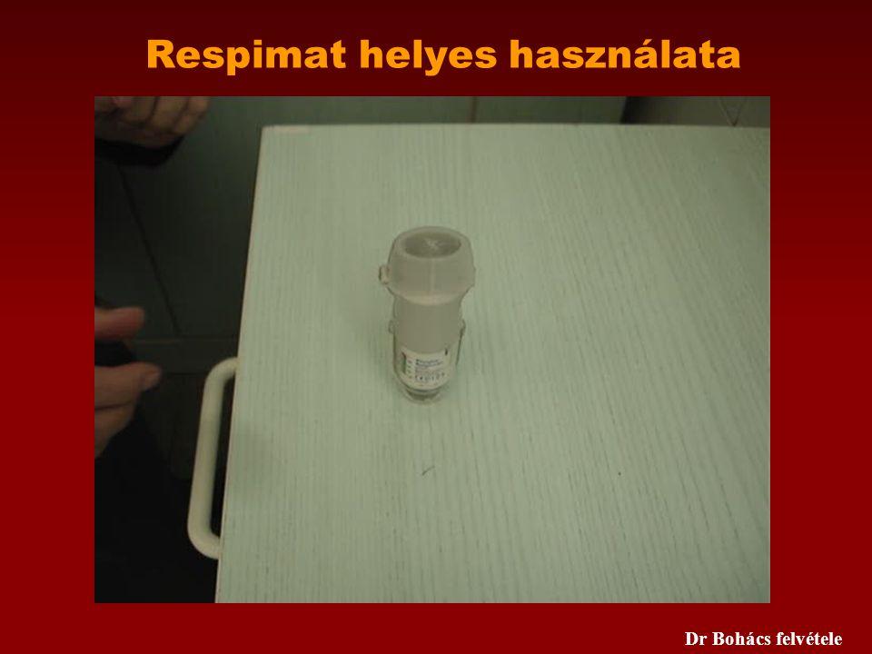 Respimat helyes használata Dr Bohács felvétele