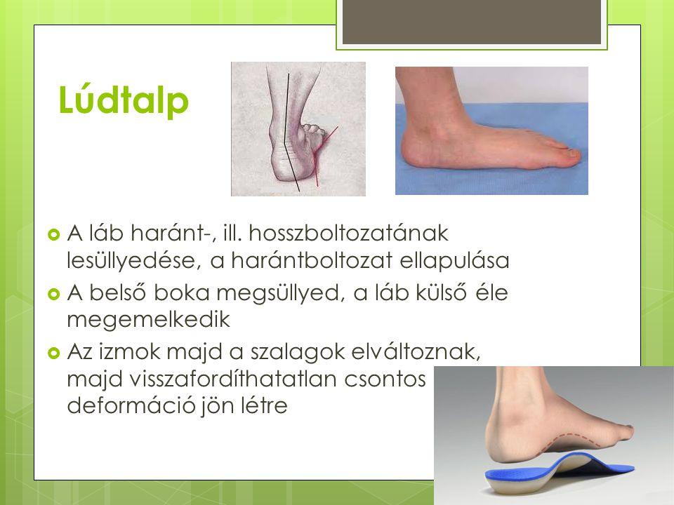 Lúdtalp  A láb haránt-, ill. hosszboltozatának lesüllyedése, a harántboltozat ellapulása  A belső boka megsüllyed, a láb külső éle megemelkedik  Az