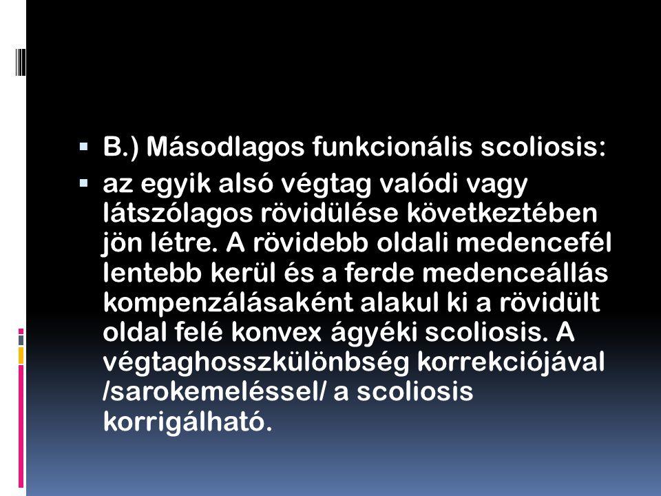 B.) Másodlagos funkcionális scoliosis:  az egyik alsó végtag valódi vagy látszólagos rövidülése következtében jön létre. A rövidebb oldali medencef