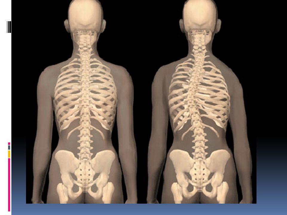  30-50 fok: 6-10 éves kor között diagnosztizált ilyen nagyságú görbület sürg ő s kezelést igényel.