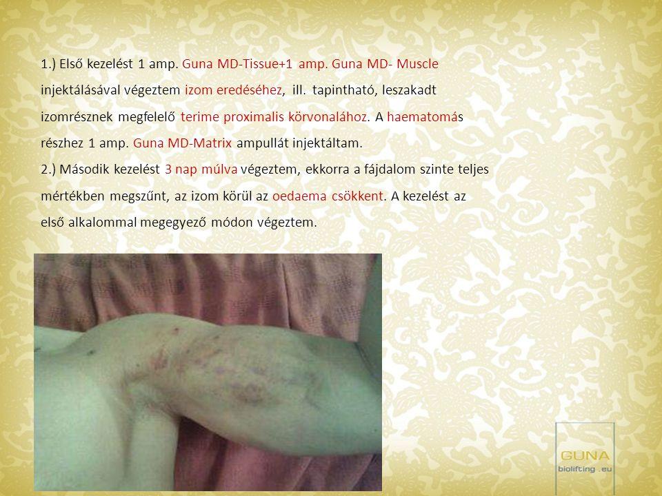 1.) Első kezelést 1 amp. Guna MD-Tissue+1 amp. Guna MD- Muscle injektálásával végeztem izom eredéséhez, ill. tapintható, leszakadt izomrésznek megfele