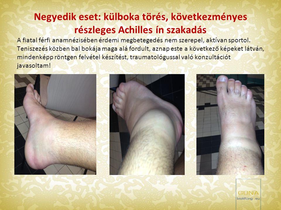 Negyedik eset: külboka törés, következményes részleges Achilles ín szakadás A fiatal férfi anamnézisében érdemi megbetegedés nem szerepel, aktívan spo