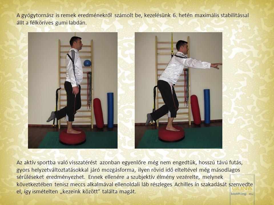 A gyógytornász is remek eredménekről számolt be, kezelésünk 6. hetén maximális stabilitással állt a félköríves gumi labdán. Az aktív sportba való viss