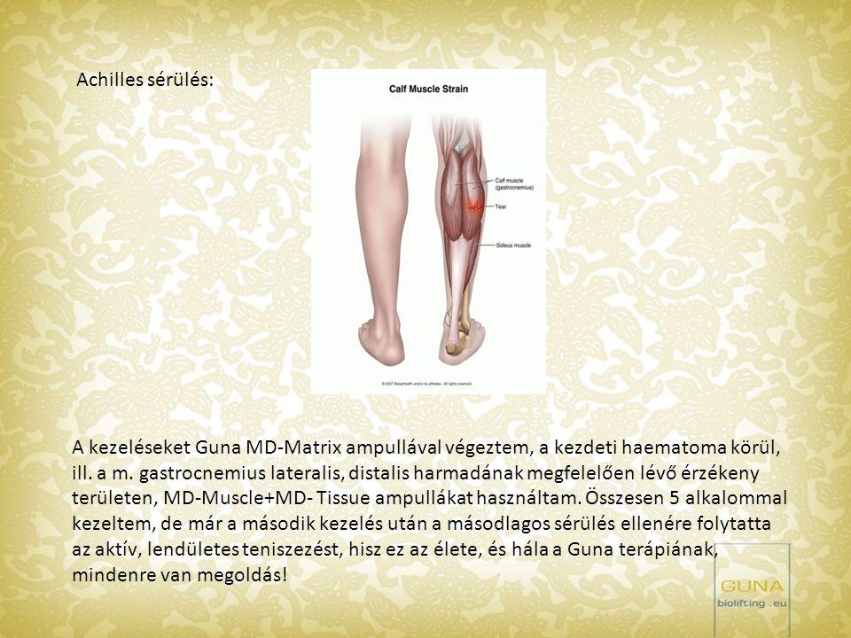 Achilles sérülés: A kezeléseket Guna MD-Matrix ampullával végeztem, a kezdeti haematoma körül, ill. a m. gastrocnemius lateralis, distalis harmadának