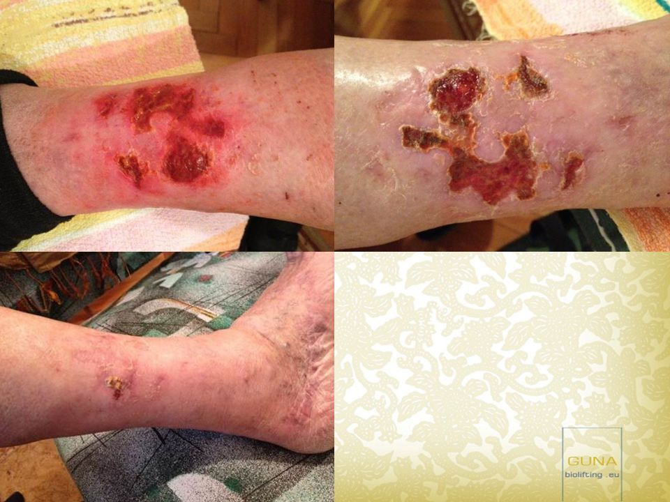 Összesen 5 alkalommal volt szükség Guna ampullákkal végzett injekciós kezelésre (MD-Matrix, MD- Tissue)