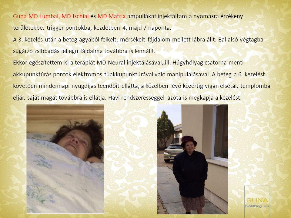 Achilles sérülés: A kezeléseket Guna MD-Matrix ampullával végeztem, a kezdeti haematoma körül, ill.