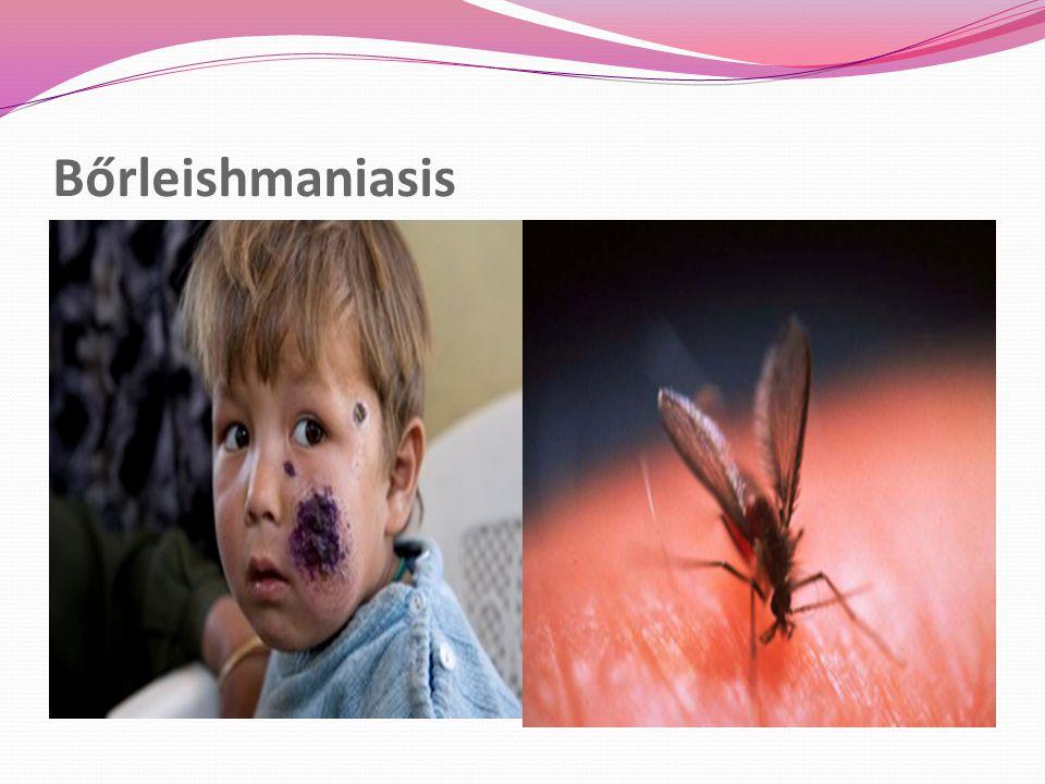 Bőrleishmaniasis