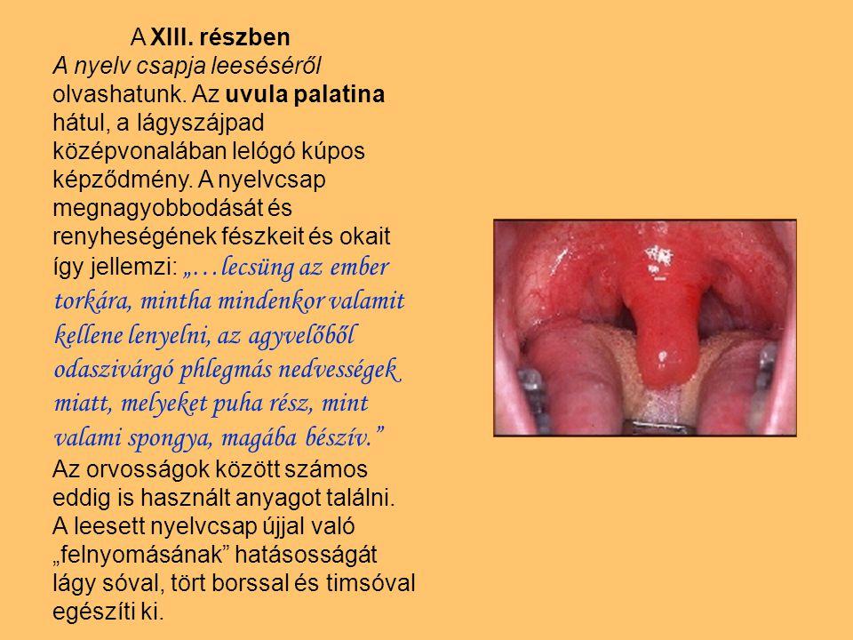 A XIII. részben A nyelv csapja leeséséről olvashatunk. Az uvula palatina hátul, a lágyszájpad középvonalában lelógó kúpos képződmény. A nyelvcsap megn