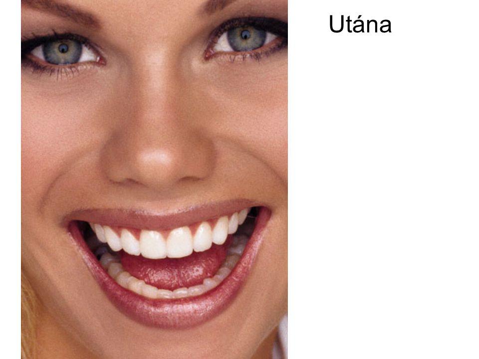 Utána