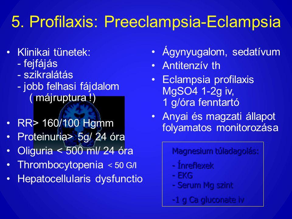 5. Profilaxis: Preeclampsia-Eclampsia •Klinikai tünetek: - fejfájás - szikralátás - jobb felhasi fájdalom ( májruptura !) •RR> 160/100 Hgmm •Proteinur