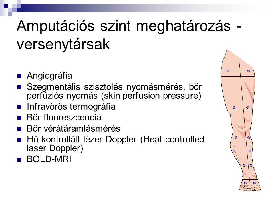  Angiográfia  Szegmentális szisztolés nyomásmérés, bőr perfúziós nyomás (skin perfusion pressure)  Infravörös termográfia  Bőr fluoreszcencia  Bőr vérátáramlásmérés  Hő-kontrollált lézer Doppler (Heat-controlled laser Doppler)  BOLD-MRI Amputációs szint meghatározás - versenytársak