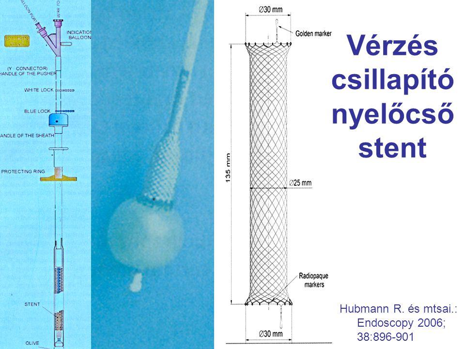 Vérzés csillapító nyelőcső stent Hubmann R. és mtsai.: Endoscopy 2006; 38:896-901