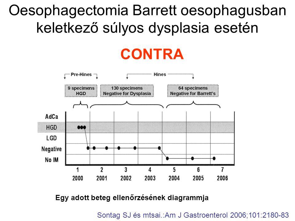 Oesophagectomia Barrett oesophagusban keletkező súlyos dysplasia esetén CONTRA Sontag SJ és mtsai.:Am J Gastroenterol 2006;101:2180-83 Egy adott beteg