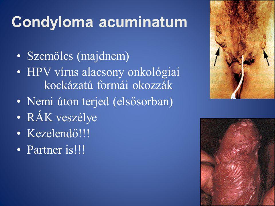 Condyloma acuminatum •Szemölcs (majdnem) •HPV vírus alacsony onkológiai kockázatú formái okozzák •Nemi úton terjed (elsősorban) •RÁK veszélye •Kezelen