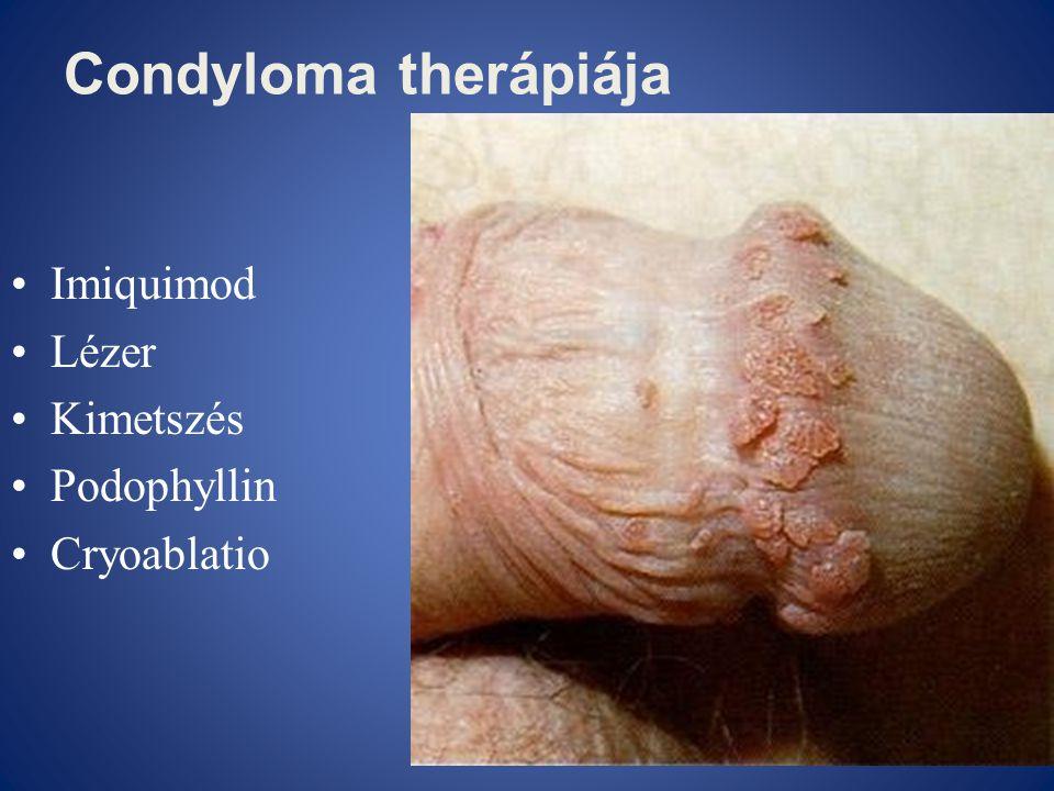 Condyloma therápiája •Imiquimod •Lézer •Kimetszés •Podophyllin •Cryoablatio