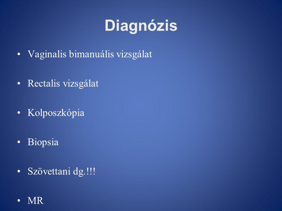 Diagnózis •Vaginalis bimanuális vizsgálat •Rectalis vizsgálat •Kolposzkópia •Biopsia •Szövettani dg.!!! •MR