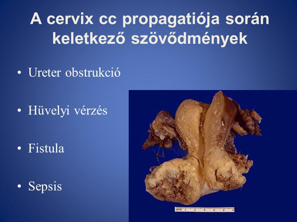 A cervix cc propagatiója során keletkező szövődmények •Ureter obstrukció •Hüvelyi vérzés •Fistula •Sepsis