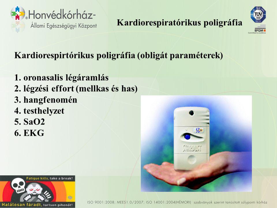 Kardiorespiratórikus poligráfia Kardiorespirtórikus poligráfia (obligát paraméterek) 1.