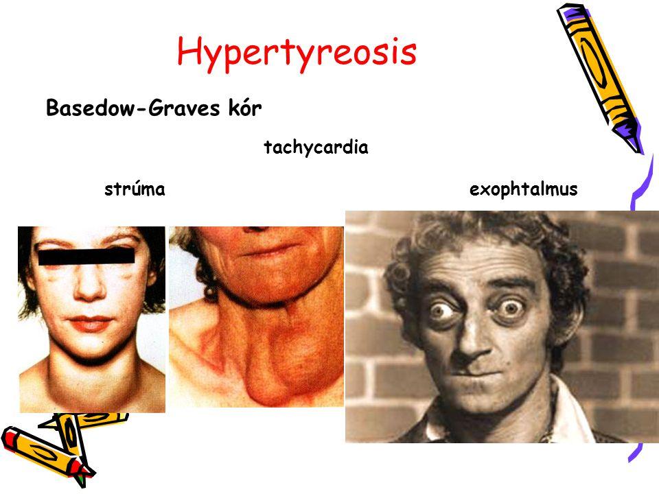 Hypertyreosis Basedow-Graves kór tachycardia strúmaexophtalmus