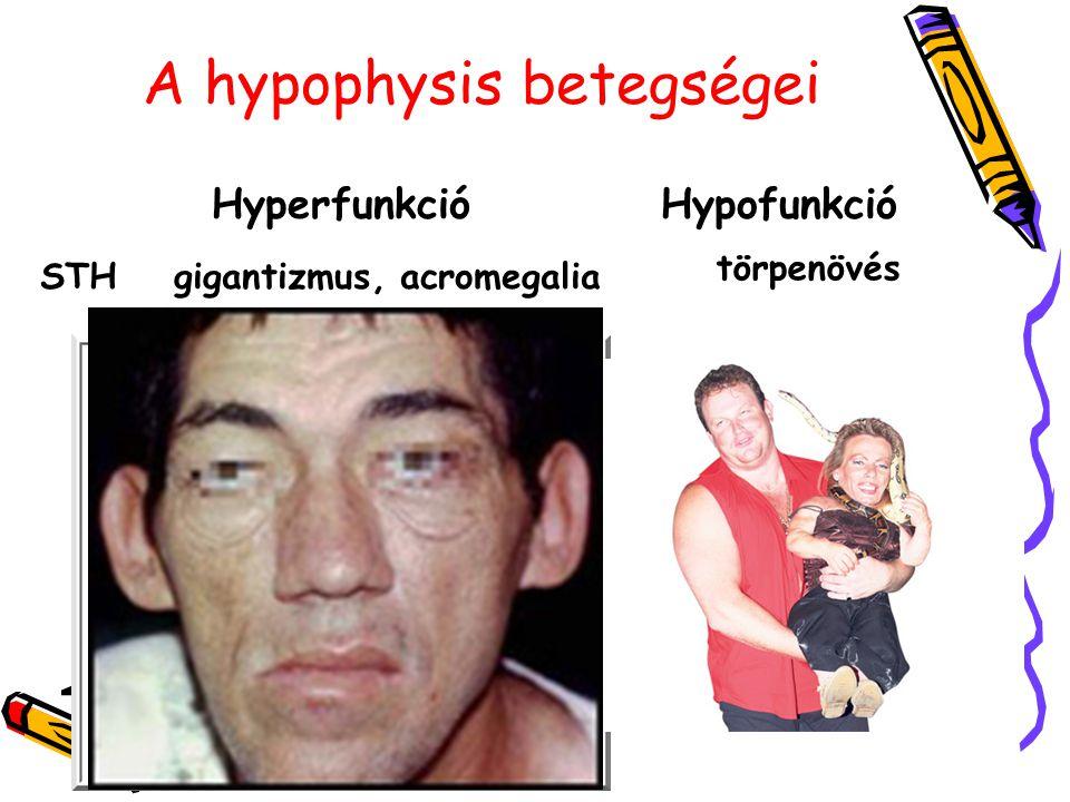A hypophysis betegségei HyperfunkcióHypofunkció STHgigantizmus, acromegalia törpenövés