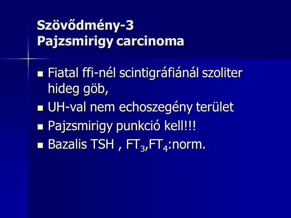 Szövődmény-3 Pajzsmirigy carcinoma  Fiatal ffi-nél scintigráfiánál szoliter hideg göb,  UH-val nem echoszegény terület  Pajzsmirigy punkció kell!!!