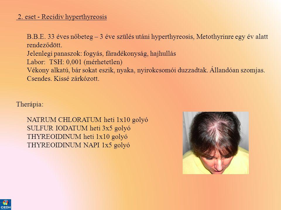 2. eset - Recidiv hyperthyreosis B.B.E. 33 éves nőbeteg – 3 éve szülés utáni hyperthyreosis, Metothyrinre egy év alatt rendeződött. Jelenlegi panaszok