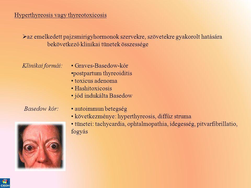 Hyperthyreosis vagy thyreotoxicosis  az emelkedett pajzsmirigyhormonok szervekre, szövetekre gyakorolt hatására bekövetkező klinikai tünetek összessé