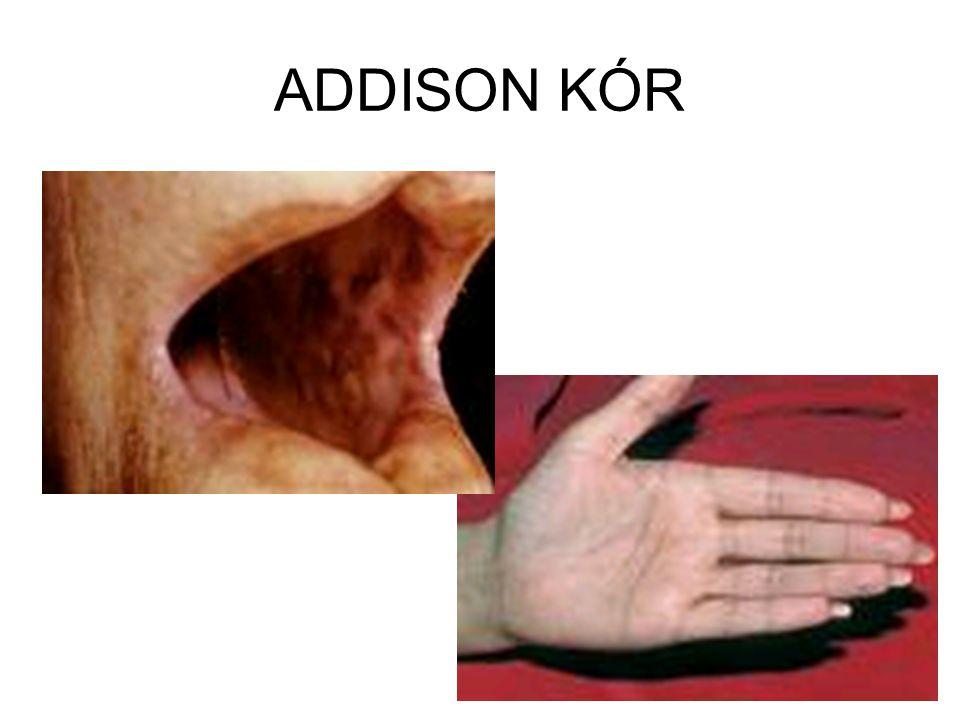 ADDISON KÓR