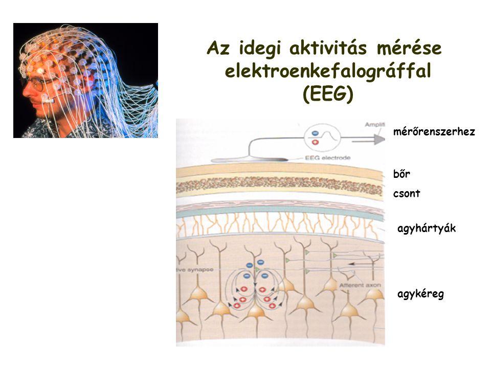 Az idegi aktivitás mérése elektroenkefalográffal (EEG) csont bőr agyhártyák agykéreg mérőrenszerhez