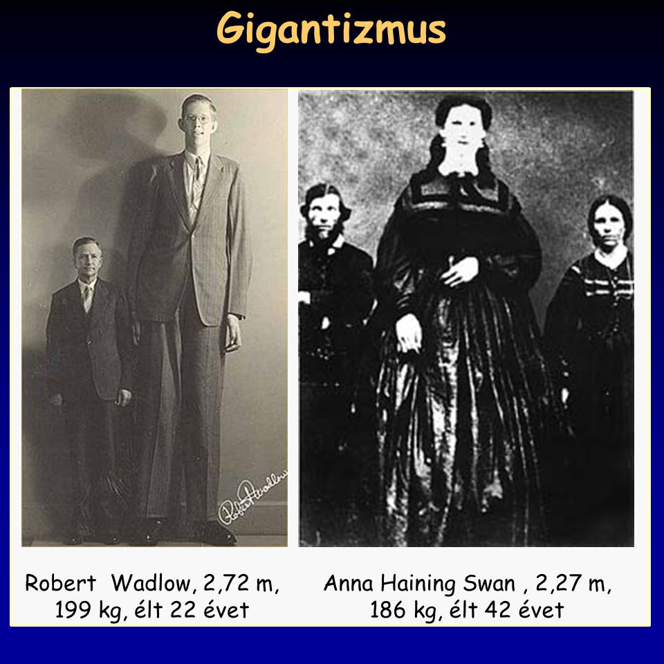 Gigantizmus Robert Wadlow, 2,72 m, 199 kg, élt 22 évet Anna Haining Swan, 2,27 m, 186 kg, élt 42 évet