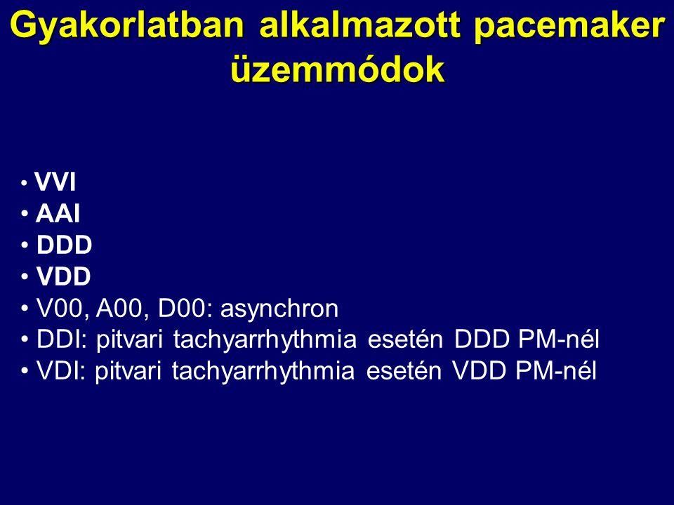 Gyakorlatban alkalmazott pacemaker üzemmódok • VVI • AAI • DDD • VDD • V00, A00, D00: asynchron • DDI: pitvari tachyarrhythmia esetén DDD PM-nél • VDI
