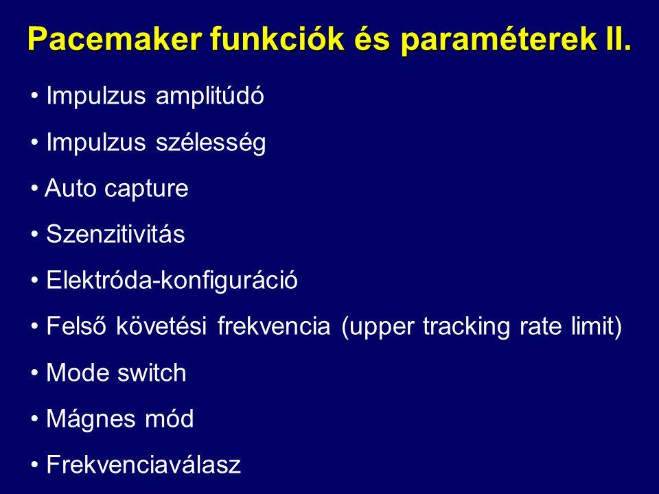 Pacemaker funkciók és paraméterek II. • Impulzus amplitúdó • Impulzus szélesség • Auto capture • Szenzitivitás • Elektróda-konfiguráció • Felső követé