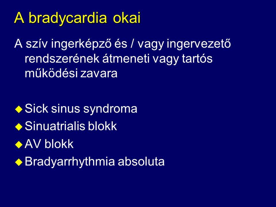 A bradycardia okai A szív ingerképző és / vagy ingervezető rendszerének átmeneti vagy tartós működési zavara u Sick sinus syndroma u Sinuatrialis blok
