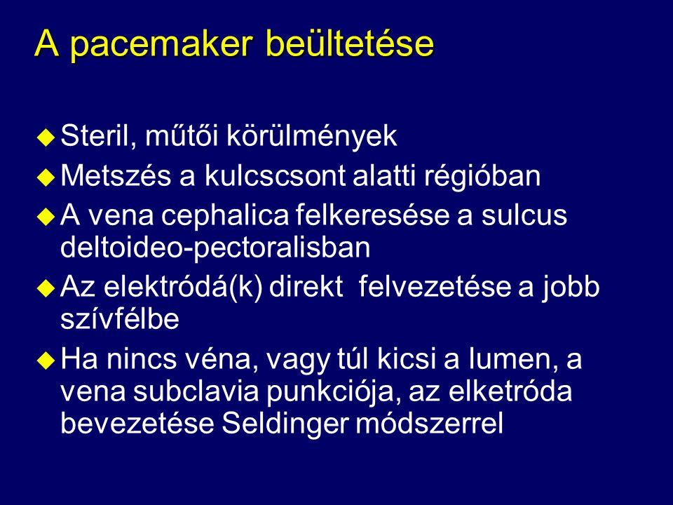 A pacemaker beültetése u Steril, műtői körülmények u Metszés a kulcscsont alatti régióban u A vena cephalica felkeresése a sulcus deltoideo-pectoralis