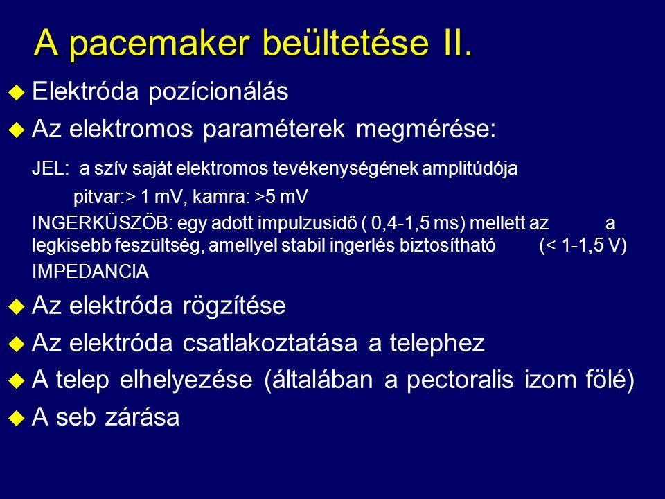 A pacemaker beültetése II. u Elektróda pozícionálás u Az elektromos paraméterek megmérése: JEL: a szív saját elektromos tevékenységének amplitúdója pi