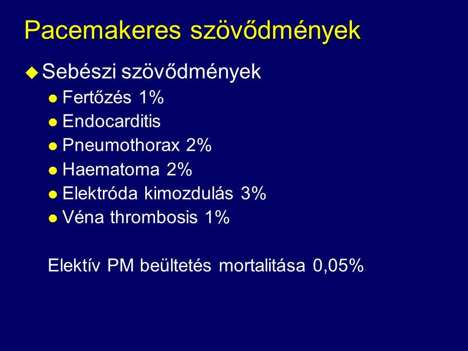Pacemakeres szövődmények u Sebészi szövődmények l Fertőzés 1% l Endocarditis l Pneumothorax 2% l Haematoma 2% l Elektróda kimozdulás 3% l Véna thrombo