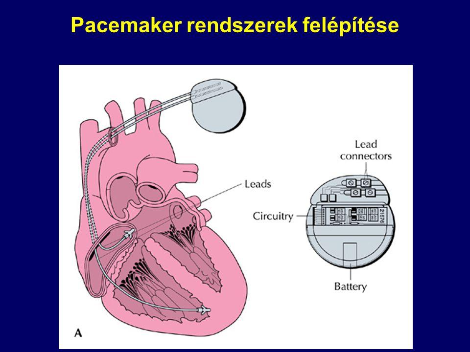 A pacemaker beültetése u Steril, műtői körülmények u Metszés a kulcscsont alatti régióban u A vena cephalica felkeresése a sulcus deltoideo-pectoralisban u Az elektródá(k) direkt felvezetése a jobb szívfélbe u Ha nincs véna, vagy túl kicsi a lumen, a vena subclavia punkciója, az elketróda bevezetése Seldinger módszerrel