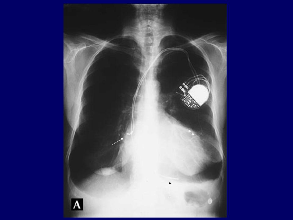 Spontán szívműködés DDD pacemakeres betegnél DDD 50/min, AVD 200 ms