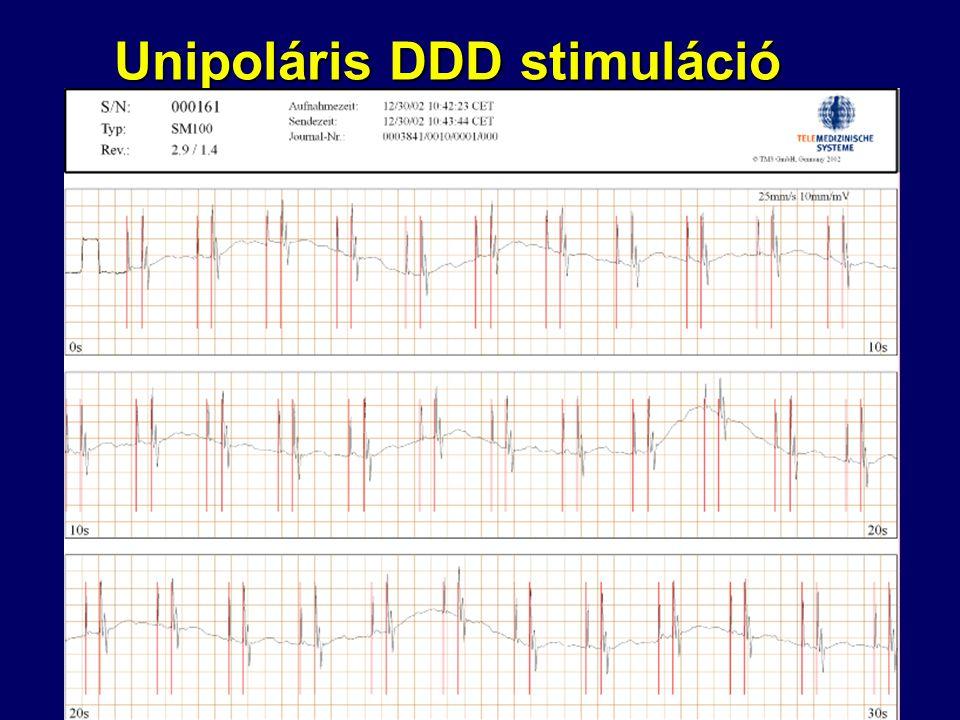 Unipoláris DDD stimuláció